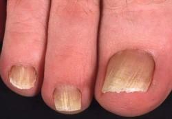 Лечение грибка ногтей во время беременности