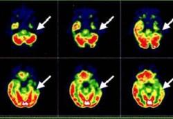 Диагностики ЭЭГ, ПЭТ И МЭГ для исследования мозга
