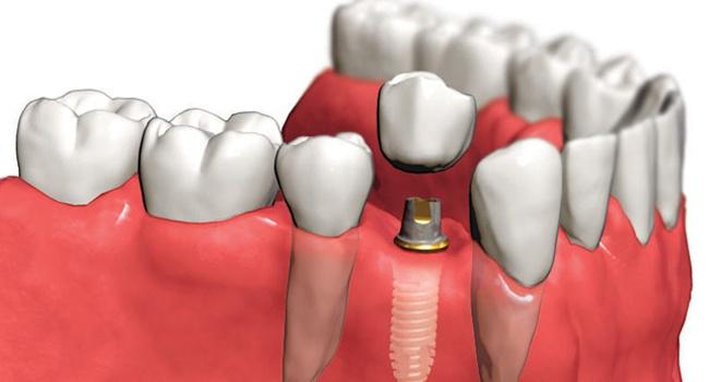 Имплантация зубов: типы и стоимость