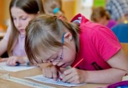 Когнитивные развитие детей с болезнью Дауна