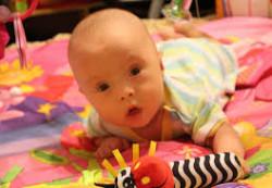 Особенности соматического состояния у детей с синдромом Дауна