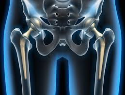 Протезирование в детской ортопедии