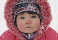 Аллергия на холод у ребенка