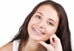 Красивая улыбка — залог успеха