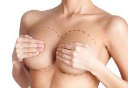 Маммопластика или подтяжка молочной железы в Одессе