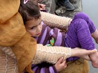 Исследователи обнаружили у детей редкое заболевание