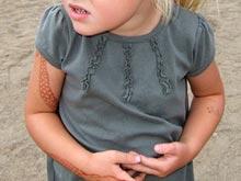 Брюшная мигрень — распространенное, но трудно диагностируемое детское заболевание