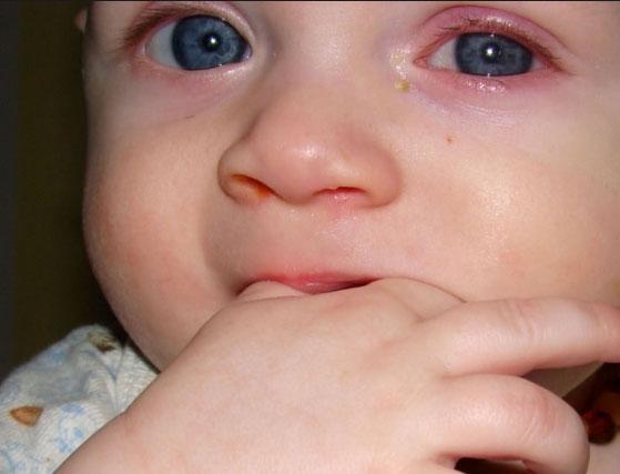 Причины конъюнктивита у ребенка