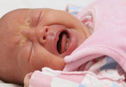 Проблемы новорожденных и грудничков