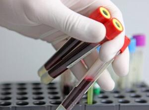 Настоящая кровь: что будущим родителям нужно выяснить о резус-факторе