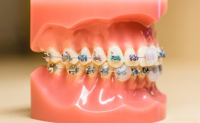 Неровные зубы у ребенка: что делать?