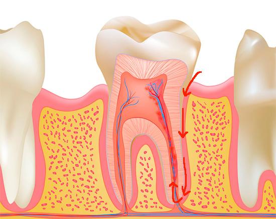 Как сохранить здоровье зубов при беременности
