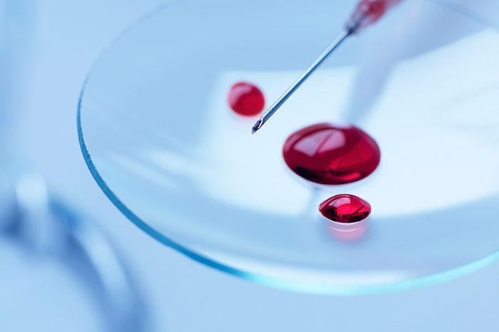 Анализ крови: в каких случаях его назначают педиатры?