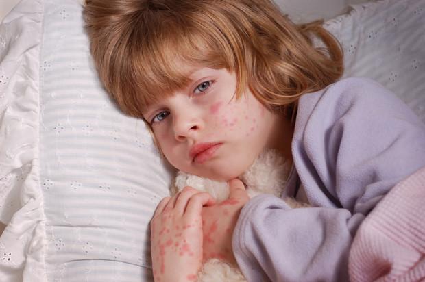 У ребенка сыпь: когда срочно нужен врач