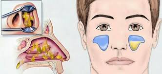 Гайморит без проколов, аденоиды без операции