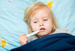 Ветрянка и краснуха у детей: переносятся легко. Симптомы, лечение и уход за больным ребенком