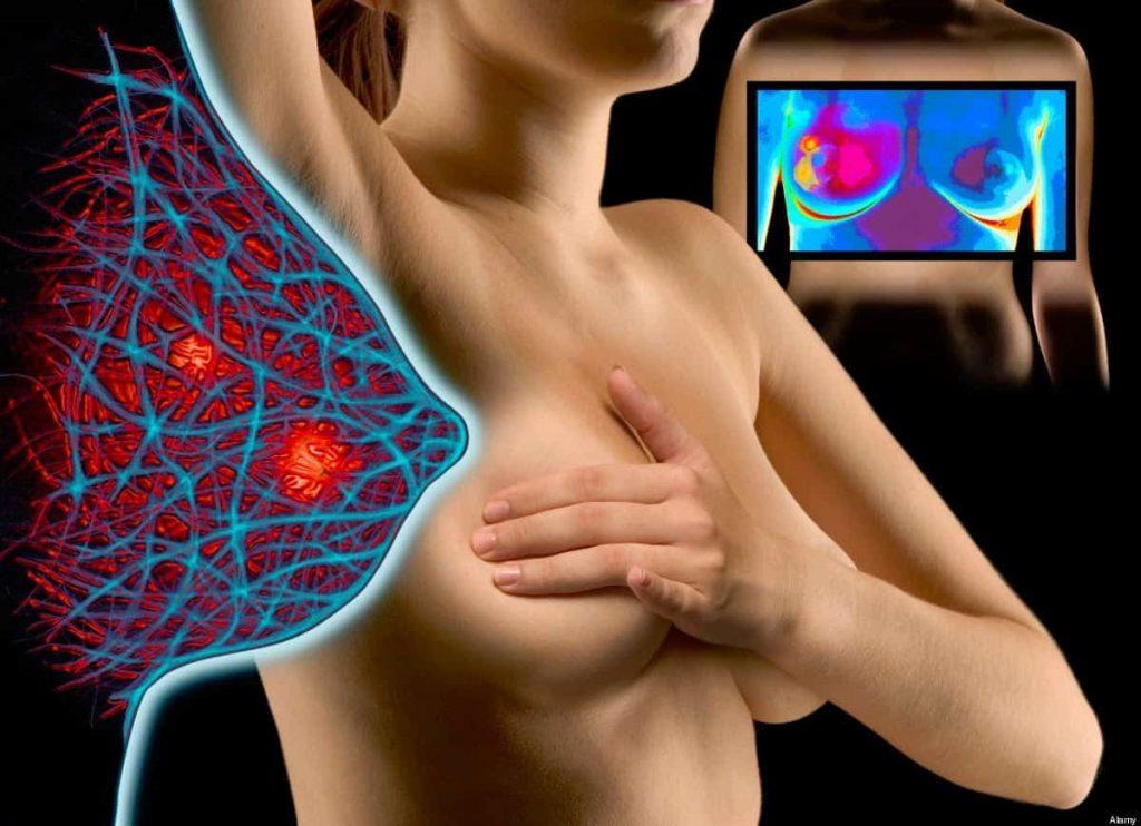 Наиболее распространенные заболевания молочной железы