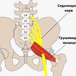 Как лечить седалищный нерв?