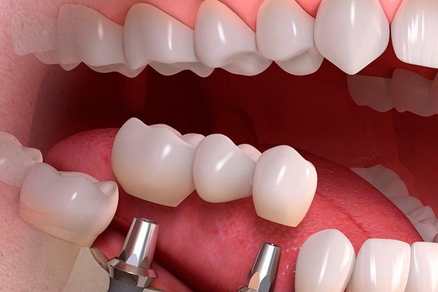 Инновационное протезирование зубов
