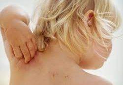 Чувствовать кожей: боремся с атопическим дерматитом